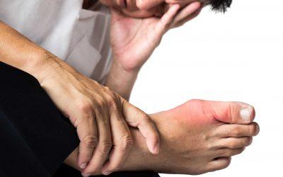 7 Suplemen untuk Mengatasi Asam Urat