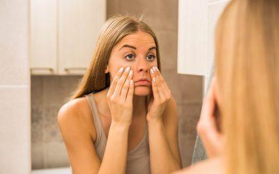 Cara Menghilangkan Kantung Mata yang Kerap Mengganggu Penampilan