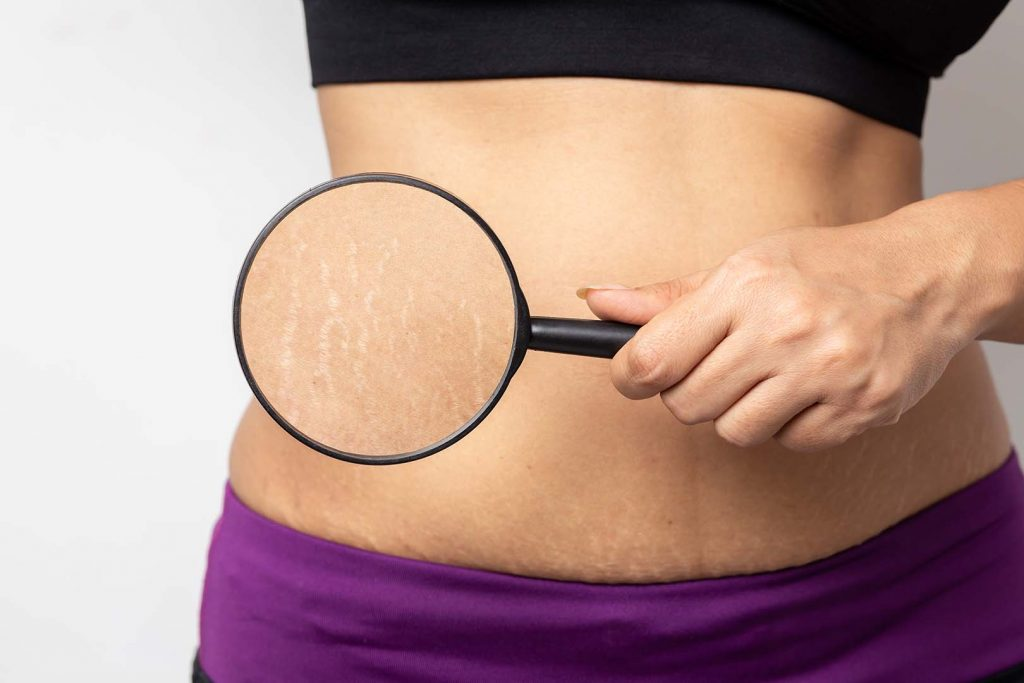 cara menghilangkan stretch mark merah