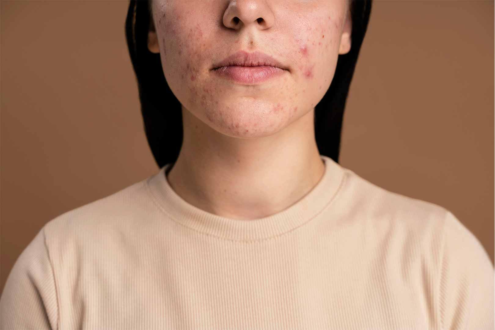 purging-kulit-wajah-1